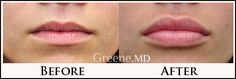 This patient wanted to increase the size of her lips without them looking 'ducky'. I achieved this very natural result, and the patient is thrilled with her full lips!