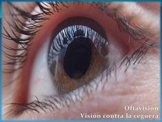 El glaucoma primario >>> ceguera