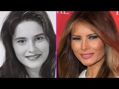 (66) Melania Trump £12000 Plastic Surgery Make Over - YouTube