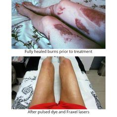 """""""I was severely burned in a fire accident in 2012. I sustained 14% burns that were 2nd and 3rd degree and had to have 5 skin grafts. Once my burns had fully healed, I began scar management with laser surgery to improve my scars aesthetically. The Fraxel laser has done an AMAZING job of making my scars softer, more supple, and far less noticeable. I strongly recommend it to any burn victims."""" #Transformation #Confidence"""