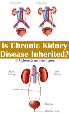 Is it serious with 72 cm kidney cyst kidney cyst means the fluid juvenile polycystic kidney diseasewhat is serving size for stage 2 kidney diseasedney ccuart Choice Image