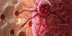De relatie tussen Kanker, Suiker en Zuurstof (gebrek) Nobelprijs winnaar Otto Warburg ontdekte dat: Kankercellen eigenlijk nauwelijks zuurstof gebruiken. Verder is de verzuring van het lichaam de b…