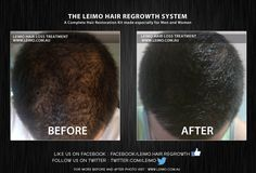 LEIMO is the world-leader in home-based Hair Regrowth treatments and is on a mission to help millions of people put hair loss behind them. Regrow your hair today in the privacy and convenience of your own home and join our other satisfied users. You deserve it! For more Before and After Visit : http://www.leimo.com.au