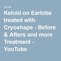 Keloid on Earlobe treated with Cryoshape - Before & Afters and more Treatment - YouTube