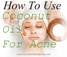 How To Treat Acne With Coconut Oil - Coconut Oil for Acne & More