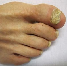 Arthritis Remedies Hands Natural Cures - This is simply the BEST EVER! toe fungus before and after Home Remedies for Toenail Fungus Arthritis Remedies Hands Natural Cures Toenail Fungus Home Remedies, Toenail Fungus Treatment, Nail Treatment, Natural Home Remedies, Herbal Remedies, Health Remedies, Toe Fungus, Household Tips, Health And Fitness