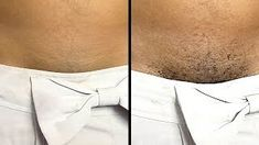 Permanently Remove Pubic Hair Instantly Using Natural Cream Pubic Hair Removal, Sugaring Hair Removal, Natural Hair Removal, Hair Removal Diy, Hair Removal Remedies, Hair Removal Cream, Natural Hair Styles, Hair Removal Scrub, Permanent Hair Removal