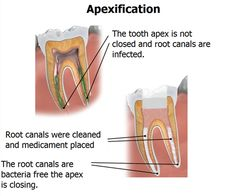 Apexification is a method of inducing a calcified barrier at the apex of a nonvital tooth with incomplete root formation. Apexogenesis refers to a vital pulp therapy procedure performed to encourage physiological development and formation of the root end. Dentaltown - Are Apexogenesis and Partial Pulpotomy technically the same thing?