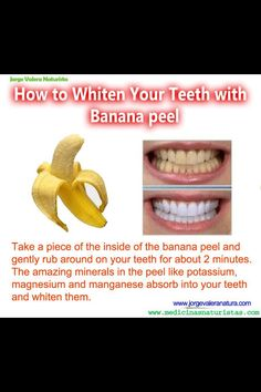 Teeth whitener through the banana #DentistOremUtah