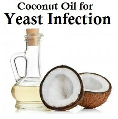 Coconut Oil for Yeast Infection