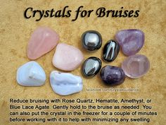 Top Recommended Crystals: Rose Quartz, Hematite, Amethyst, or Blue Lace Agate. Additional Crystal Recommendations: Rainbow Obsidian or Fluorite.  Hold your preferred crystal(s) to the site of pain or near it as needed. You can also put the crystal in the freezer or run it under cold water for a couple of minutes. The cold crystal will also help reduce any swelling.