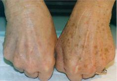 Mit Heilpflanzen Hautflecken behandeln Treat skin spots with medicinal plants Age Spot Removal, Brown Spots On Face, Dark Spots, Skin Spots, Healthy Skin, Natural Remedies, Herbal Remedies, Health Tips, Health Benefits
