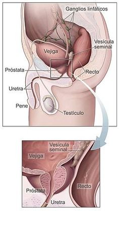 Know about cures & symptoms of prostate enlargement cancer. We are the expert physicians for treatment of testosterone, prostate cancer & enlarged prostate. Prostate Massage, Prostate Cancer, Benign Prostatic Hyperplasia, Lymph Nodes, Reproductive System, Medical Information, Natural Cures, Natural Foods, Men Health