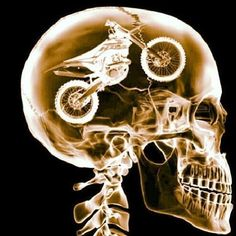 Pretty sure this is a CT scan of Chris' brain