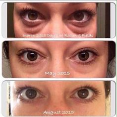 REDEFINE Multi-Function Eye Cream Results!!! This has sold out the last 3 times its been in stock, so hurry up and get this magic cream today!   kapuaphillips.myrandf.com