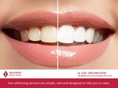 Our whitening services are simple, safe and designed to help you to relax.  http://roycrestdental.ca/ #WalkInDentalBrampton #bramptondentist #dentistrylife #dental #dentistry #dentalhealth #brampton #nobraces #smiledesign #treatment #dentaltips #beauty #orthodontics #dentalhygienist #invisalignlife #willigeller