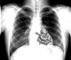 ♪ Doutor, eu não me engano, meu coração ♥ é Corinthiano ♫
