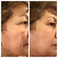 Hot new skin care line, with a powerful anti-aging microcream, that will take 2 minutes to look 10 years younger! Can use with or without makeup. Saggy Eyes, Facelift In A Bottle, Eye Tricks, Ageless Beauty, Uneven Skin Tone, Prevent Wrinkles, Without Makeup, New Skin, Look In The Mirror
