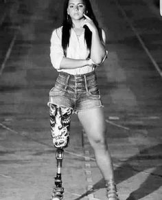 Even with a Prosthetic leg, she exudes great confidence (photo) - http://www.thelivefeeds.com/even-with-a-prosthetic-leg-she-exudes-great-confidence-photo/