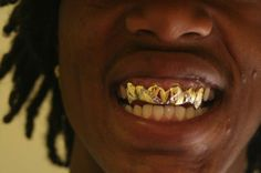 . Gold Fang Grillz, Gold Teeth, Gold Fangs