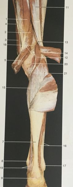 Dorsal aspect muscles of lower right leg after cutting upper gastrocnemius longus and brevis. Gross Anatomy, Muscular System, Muscle Body, Free Education, Occupational Therapy, Muscles, Fill, Occupational Therapist, Muscle Tissue