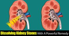 Dissolve Kidney Stones With A Powerful Effective Remedy