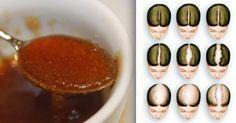 rimedio ricrescita capelli