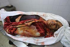 #استشهاد أم وأطفالها الأربعة في تل الزعتر #حرب_غزة #PGFTU http://ithadpal.org/news.php?action=view&id=3030