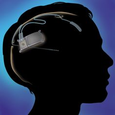 New Medical Device Treats Epilepsy With A Well-Timed Zap