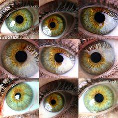 Lynda Olsen green eye with Central heterochromia.   Iridium Heterochromia
