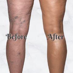 Flawless Body Concealer – Geniwo Concealer For Dark Skin, Best Concealer, Leg Makeup, Body Makeup, Makeup To Cover Bruises, Bumps On Legs, Leg Scars, Crepe Skin, Body Foundation