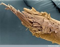 Split end of human hair!!!