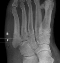Jones fracture, healing zones according to Polzer - Jones fracture - Wikipedia, the free encyclopedia
