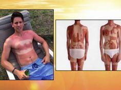 #sunburnart los dermatólogos advierten de los peligros que tiene para la salud  http://www.antena3.com/noticias/sociedad/nueva-peligrosa-moda-tatuajes-sol-llega-estados-unidos_2015070700212.html
