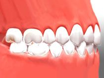 Dr. Scott Gallup in Okotoks provides invisible braces to the patients, It helps to straighten their teeth.