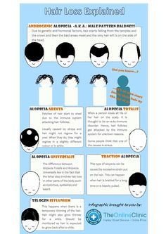 hair loss explained infographic - Provillus hair loss treatment for thinning hair or hair loss. Provillus is proven to cure alopecia areata also male and female pattern baldness. http://www.provillushairlosscures.com