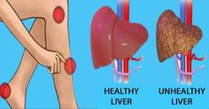 Pay Attention Closely To These Warning Signs About Your Liver That Can Cause Weight Gain – Leber entgiften Natural Cleanse, Natural Health, Lose Weight Quick, Weight Gain, Health And Beauty Tips, Health Tips, Health Care, Liver Detox Symptoms, Liver Detox Cleanse