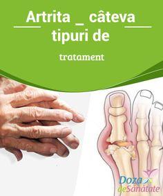 #Artrita – câteva tipuri de #tratament  Artrita este o boală cronică ce, în #anumite cazuri, nu poate fi vindecată decât prin #intermediul unei intervenții chirurgicale. Însă, este important să știi că există anumiți pași pe care îi poți urma dacă vrei să eviți să ajungi sub bisturiu pentru a trata artrita. Health, Medicine, Health Care, Salud
