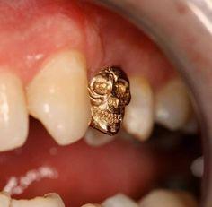 Dentaltown - Have you ever made a tooth crown skull? Dental Quotes, Dental Humor, Amil Dental, Tooth Tattoo, Tooth Gem, Piercings, Dental Technician, Dental Art, Gold Teeth