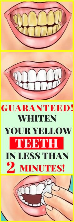 If you feel unconfident or insecure due to your yellow teeth, you should definitely try this natural remedy that will whiten your teeth!