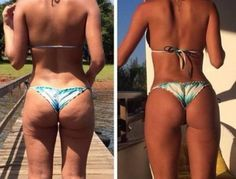 1 Tip Helps to Kill Cellulite on butt, legs, hips & thighs - Fitness Nutrition Fat Loss and Fitness Goals, Fitness Tips, Fitness Motivation, Health Fitness, Bikini Challenge, Workout Schedule, Weight Loss Inspiration, Get In Shape, Cellulite