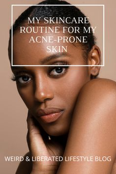Acne Prone Skin, Oily Skin, Beauty Lash, Thing 1, Top Blogs, Acne Free, Lifestyle Group, Clear Skin, Cosy