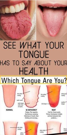 Beauty Discover What Your Tongue Can Say About Your Health - Nutrition Advice Herbal Remedies Health Remedies Natural Remedies Health And Nutrition Health And Wellness Health Facts Health Fitness Health Diet Health Chart Herbal Remedies, Health Remedies, Natural Remedies, Home Remedies, Tongue Health, Natural Health Tips, Natural Skin, Natural Beauty, Natural Facial