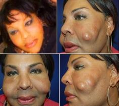 The woman who had concrete injected in her face by fake doctor..CONCRETE really.. and why?