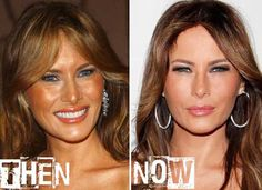 Melania Trump Plastic Surgery Before And After Botox Botox Before And After, Celebrities Before And After, Melania Trump Model, Celebrity Plastic Surgery, Jessica Parker, Under The Knife, Cosmetic Procedures, Rhinoplasty, Cosmetic Dentistry