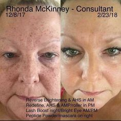 We ALL should have a financial PLAN B! The products work, the business works—both are changing lives! You can do this—I would be honored to help you #rodanandfields #RF #lifechangingskincare