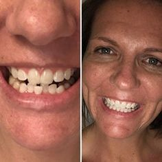Get clear braces without in-office visits for thousands less than a traditional orthodontist. Get started with a free scan at a Candid Studio. Teeth Alignment, Clear Aligners, Teeth Straightening, Teeth Whitening Diy, Starter Kit, Your Smile, Beauty Skin, Chakra, Candid