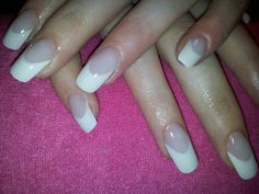 french acrylic with deep smile lines