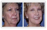 Do you feel insecure about your aging signs? Do you feel like cutting off some sagging skin or excess fat? Are you worried that you look older than you actually are? Being self-conscious about your looks is something one can't control. http://neckliftbeverlyhills.blogspot.in/2014/10/safe-neck-lift-at-alessi-institute.html