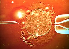 """IVF treatment sperm being injected into human egg. """"You prepare your uterus to welcome a potential embryo. If your uterus responds to the hormones, the frozen eggs must then be successfully thawed––-no easy task given low thaw survival rates. An egg's shell hardens when frozen in liquid nitrogen so to attempt in vitro fertilization sperm must be injected directly into the egg with a needle to fertilize the egg through a technique known as ICSI (Intracytoplasmic Sperm Injection)."""""""